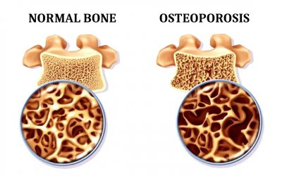 Yoga: A way to improve Osteoporosis ?